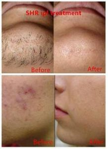 IPL Shr Hair Removal IPL Hair Removal Machine pictures & photos