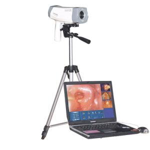 High-End Electronic Colposcope for Gynecology Rcs-500 Sony Camera CCD 800, 000 Pixels Optional 1, 000, 000 Pixels -Candice pictures & photos