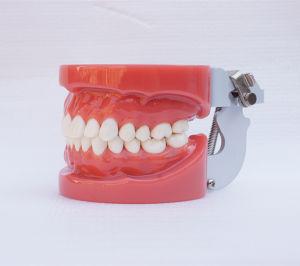 Dental Standard Teeth Teaching Model (28PCS, Hard Gum, wax fixed)