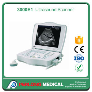 PT-3000e1 Portable Ultrasound Scanner Machine pictures & photos