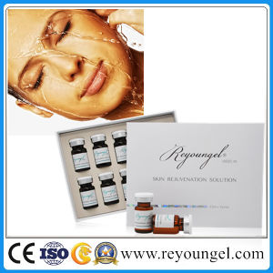 Reyoungel No Cross Linked Hyaluronic Acid for Mesotherapy with 18 Type or 4type Amino Acid pictures & photos