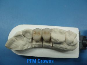 Dental Pfm Porcelain Fused to Non Precious Metal Crown pictures & photos