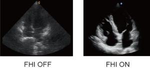 Hospital Medical Trolley 4D Color Doppler Ultrasound Chison Qbit 5 pictures & photos