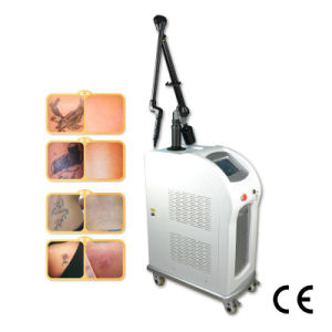 Q-Switch ND YAG Laser Tattoo Removal Machine 2000mj (C6) pictures & photos