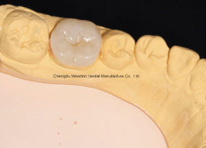 Emax Crown for Clinic From Chinese Dental pictures & photos