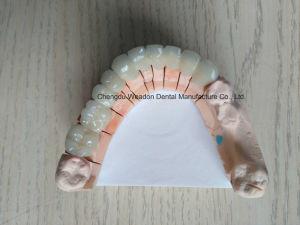 Metal Fused Ceramic Bridge Denture From Lab Service Center pictures & photos