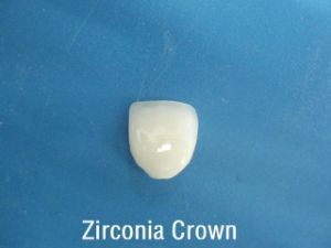 Dental Veneers/ Onlay/ Inlays of Zeconia Crowns Produced in China Dental Laboratory pictures & photos