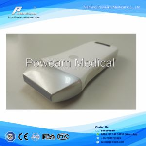 Ce FDA New Developed 4D Wireless Ultrasound Machine Bladder Probe pictures & photos