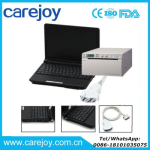 Carejoy Full Digital Laptop Ultrasound Scanner/Ultrasound Machine Rus-9000f -Maggie pictures & photos