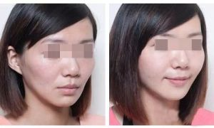 Ce Singfiller Hyaluronic Acid Dermal Filler Injection pictures & photos