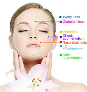 Ce Singfiller Hyaluronic Acid Injection for Anti-Aging pictures & photos