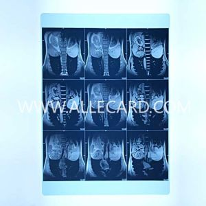 Pet Printing X-ray Film Inkjet Film pictures & photos