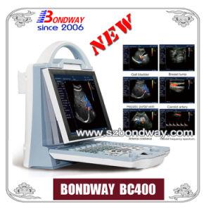 China Cheap Color Doppler Ultrasound System Bc400