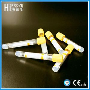 Ce Approved Gel and Clot Activator Vacuum Blood Collection Tube with Yellow Top pictures & photos