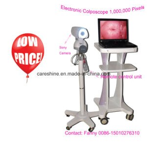 Digital Electronic Colposcope (RCS-500II) -Fanny pictures & photos