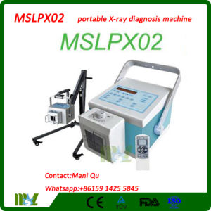 Best Price Digital/Portable X-ray Diagnosis Machine (MSLPX02)