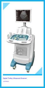 Atnl51353 Trolley Ultrasound Scanner