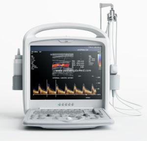 Host Sale Medical Equipment 4D Portable Color Doppler Ultrasound Scanner pictures & photos