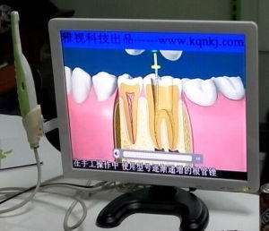 Intraoral Camera with 17 Inch Monitor pictures & photos