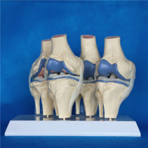 Disease Comparision Medical Products Knee Joint Skeleton Teaching Model (R020904) pictures & photos