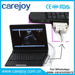Laptop Ultrasound Machine Scanner Diagnostic System Ultrasonic Equipment with Convex Probe Sony Video Printer Optional -Maggie pictures & photos