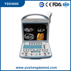 Ce Medical Abdominal Diagnosis Digital Portable Laptop Ultrasound Scanner Ysd4600 pictures & photos