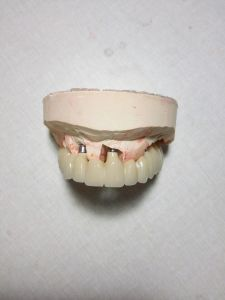 Full Arch Metal Ceramic Implant Bridge with Cemented Retained pictures & photos
