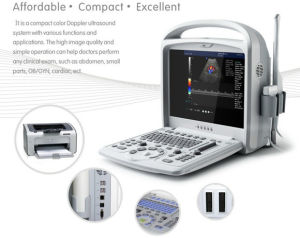 Portable Human Ultrasound Scan Color Doppler Us Machine pictures & photos