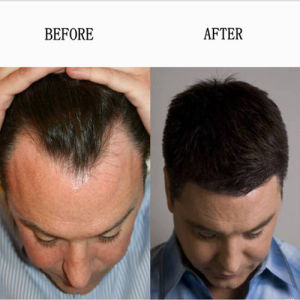 99% Quality Minoxidil Mino Powder for Hair Loss Treatment with Safe Shipping pictures & photos
