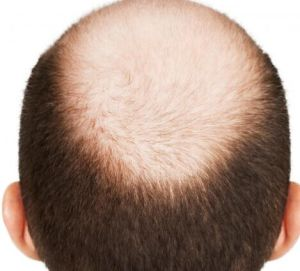 (Inositol Nf12) -- Prevent Hair Inositol pictures & photos