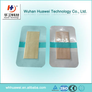 Ce FDA Transparent PU Film Wound Care Advanced Chitosan Medical Dressing pictures & photos