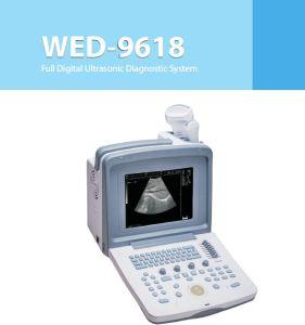 Cow Pregnancy Test Veterinary Pregnancy Diagnosis Apparatus pictures & photos