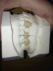Dental Porcelain Fused to Metal Crown pictures & photos