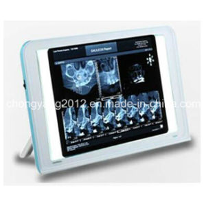 Luna New Type Dental X-ray Film Viewer pictures & photos