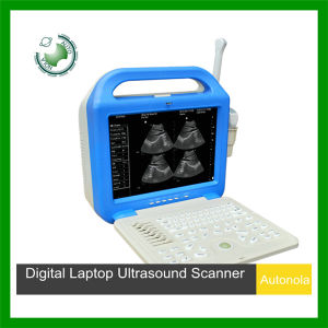 Human Ultrasound System