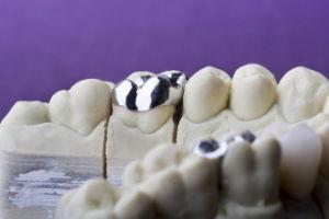 Dental Non-Precious Yellow Gold Metal Crowns pictures & photos