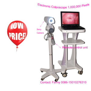 1, 000.000 Pixels Sony Camera Electronic Colposcope / Vagina Colposcope pictures & photos
