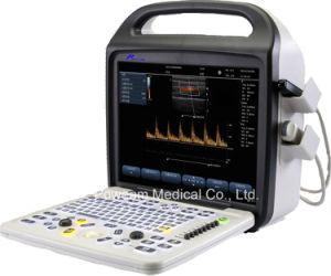 Hospital Portable Color Doppler Ultrasound (C10) pictures & photos