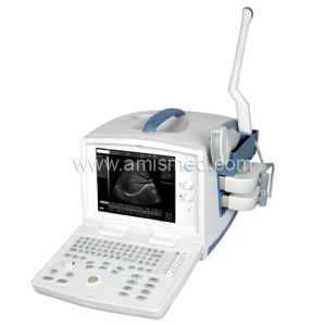 Digital Ultrasonic Diagnostic Imaging System (AM-9618F Plus) pictures & photos