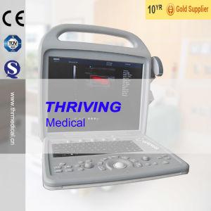 Portable Color Doppler Ultrasound Scanner (THR-CD580) pictures & photos
