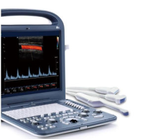 FDA 3D Portable Ultrasound Machine for Hot Sale pictures & photos