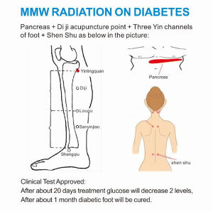 Diabetes Medical Supplies Millimeter Wave Diabetes Therapy Machine pictures & photos
