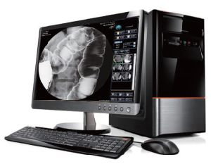 HDF-6000 High Frequency Digital X Ray Equipment pictures & photos