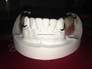 Dental Cobalt Chrome Casting Framework Denture pictures & photos