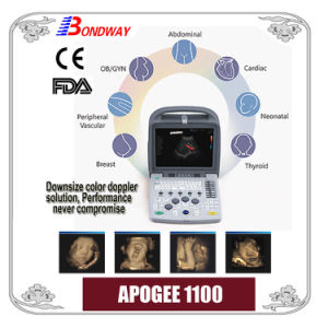 Portable Color Doppler Ultrasound (Apogee 1100)