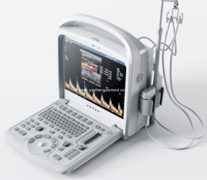 Ysd280 3D/4D Color Doppler Digital Portable Ultrasound Scanner pictures & photos