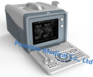 Medical Portable Ultrasound Scanner (WHYC6) pictures & photos