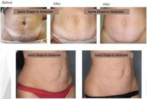 Velashape V9 Slimming System New Bipolar RF Body Contouring Equipment Velashape Cavitation Slimming Body Massager Machine pictures & photos