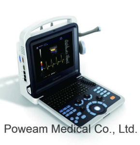Hospital Full Digital Portable 12.1 Inch 4D Color Doppler Ultrasound (D20) pictures & photos