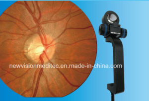 Fundus (Retinal) Viewing System for Slit Lamp pictures & photos